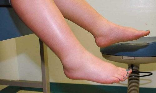 Як боротися із затримкою рідини в ногах