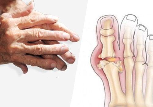 руки та скелет стопи
