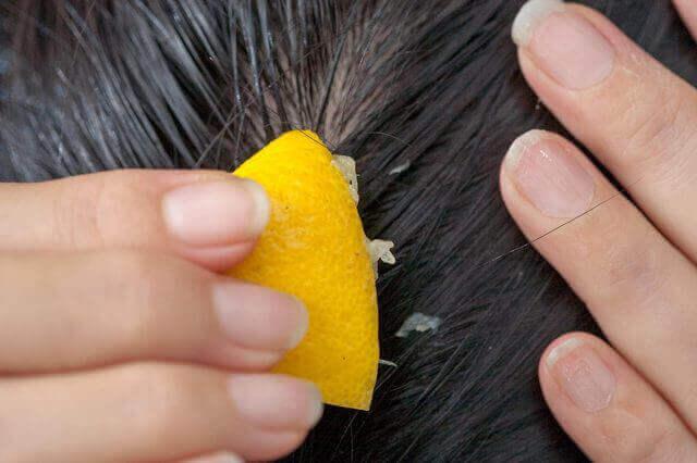 Як запобігтивипадінню волосся за допомогою лимонного соку