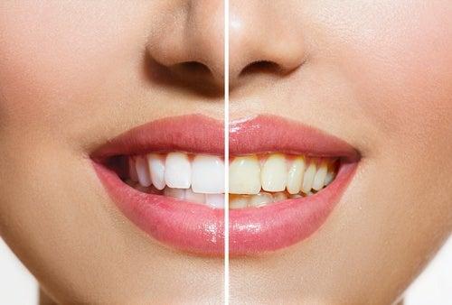 сіль використовують для відбілювання зубів