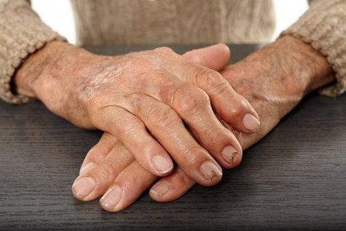 Куркума від артриту