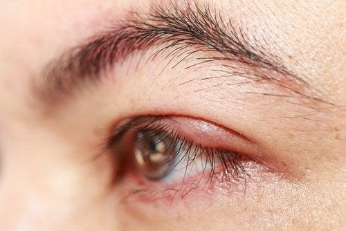 Очі та рицинова олія