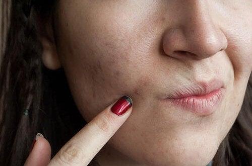 8 продуктів для очищення шкіри