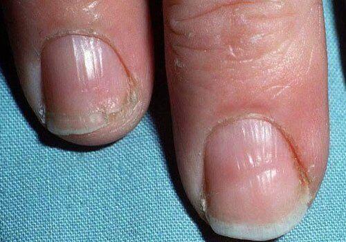 Ламкі нігті