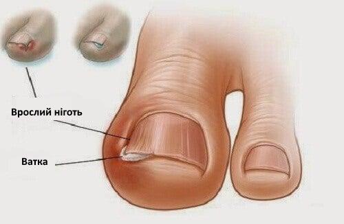лікування врослих нігтів