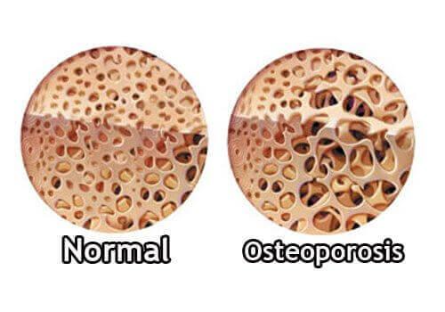 будова нормальної кістки та кістки з остеопорозом