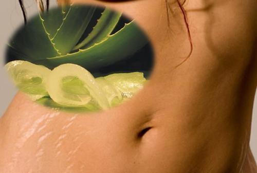 6 натуральних засобів проти розтяжок