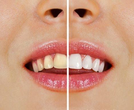 жовті зуби
