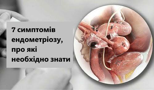 1-endometriosis-symptoms