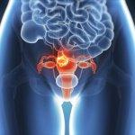 1-endometrioz