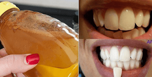 1-vidbiliuvannia-zuby