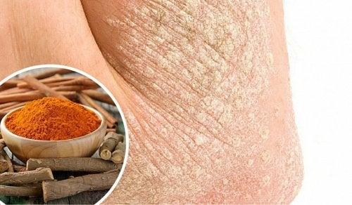 7 натуральних методів лікування псоріазу