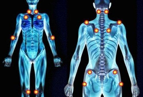 5 ранніх ознак фіброміалгії