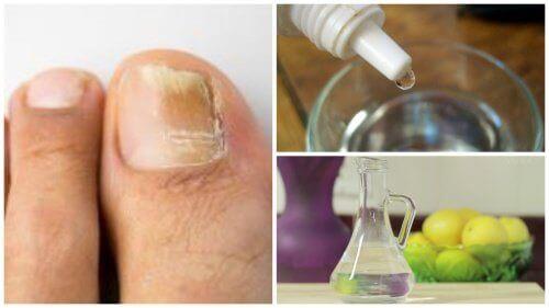 3 природні інгредієнти для боротьби з грибком нігтя
