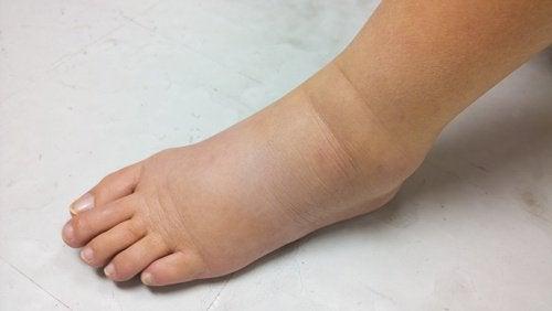Набряк ніг при хворобі нирок