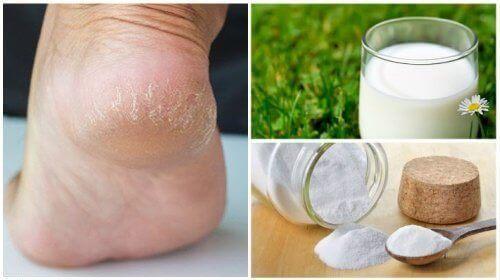 Пом'якшіть шкіру стоп за допомогою двох інгредієнтів