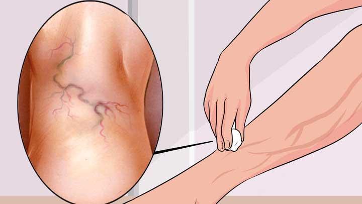 варикозне розширення вен нижніх кінцівок