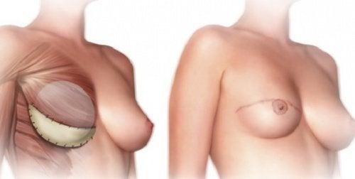 1-mastektomiya