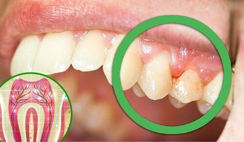 6 імовірних причин зубного болю