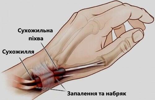 Теносіновіт: запалення зап'ясть і суглобів ніг