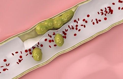 9 продуктів, які слід споживати для природного очищення артерій