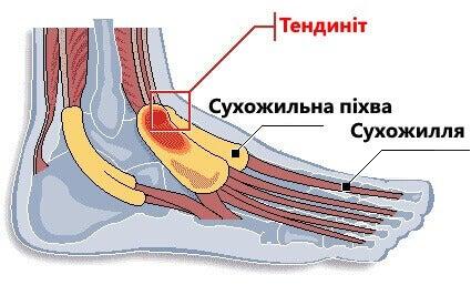 теносиновіт на стопі
