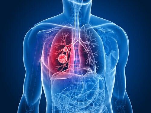 рак легенів