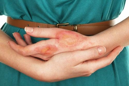 Інфекція та рак шкіри