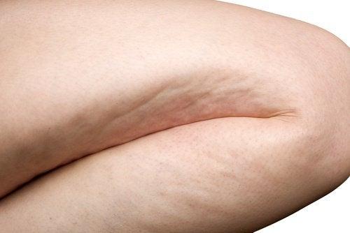 6 вправ для ефективної боротьби з целюлітом