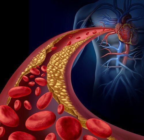 Холестерин та артерії