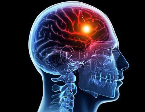 8 попереджувальних ознакцеребрального інсульту