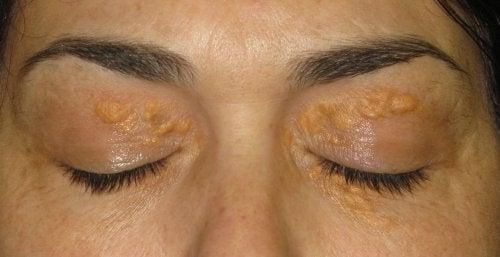 Ксантелазми: білі плями навколо очей