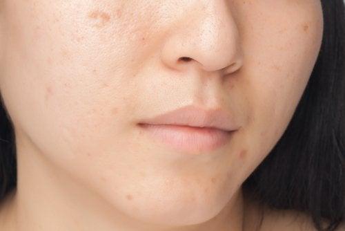 плями на обличчі дівчини
