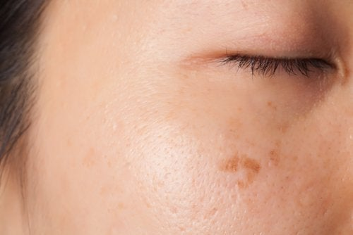 Плями на шкірі