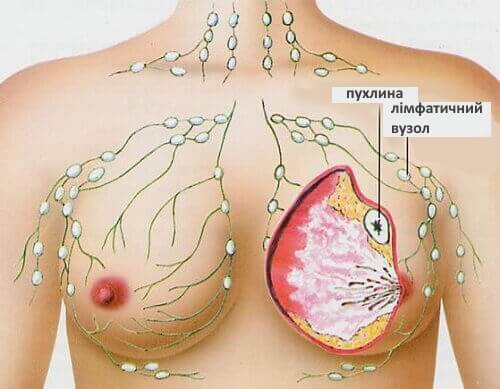 Вчені виявили продукт для профілактики раку грудей