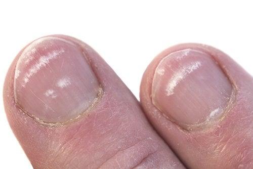 Чому на нігтях з'являються білі плями?