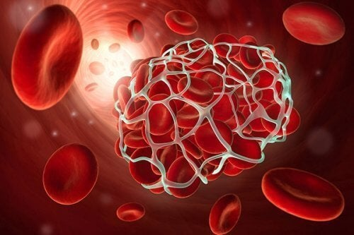 8 продуктів, щоб запобігти тромбозу та інсульту