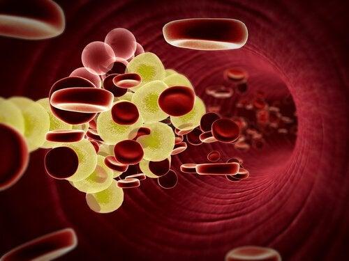 холестерин у сосуді