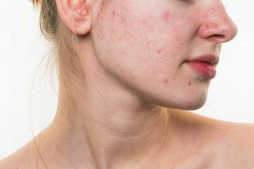 5 харчових звичок, які можуть зіпсувати ваше обличчя