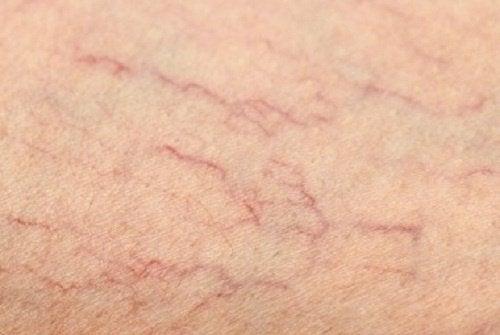 Як позбутися варикозу та судинних сіток