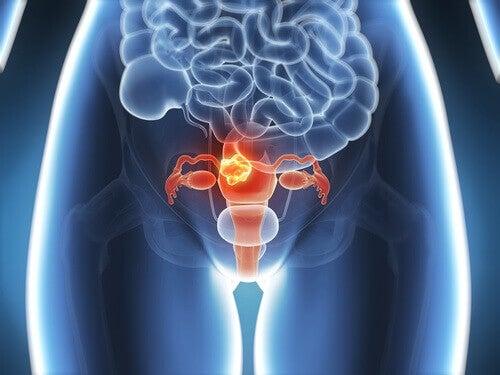 6 симптомів раку шийки матки, про які варто знати