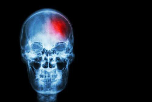 Симптоми інсульту, про які варто знати