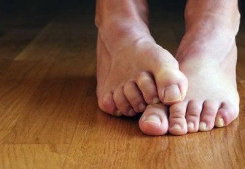 7 фактів, які треба знати про грибок нігтів