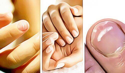 5 ознак на нігтях, які вказують на негаразди зі здоров'ям
