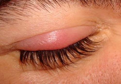 зображення початкової стадії ячменю лівого ока