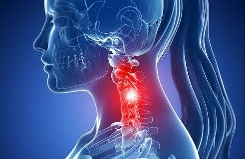 Симптоми шийного спондильозу і його лікування натуральними засобами