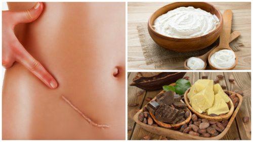 6 найкращих природних засобів для зменшення шрамів
