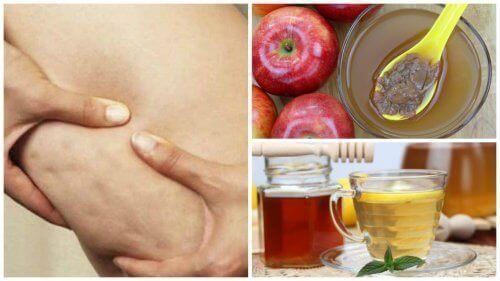 Мед та яблучний оцет для боротьби з целюлітом