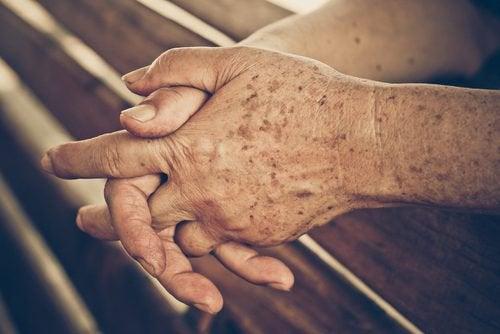 вікові плями на руках