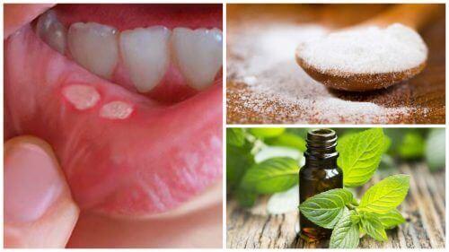 7 домашніх засобів для прискорення загоєння стоматиту